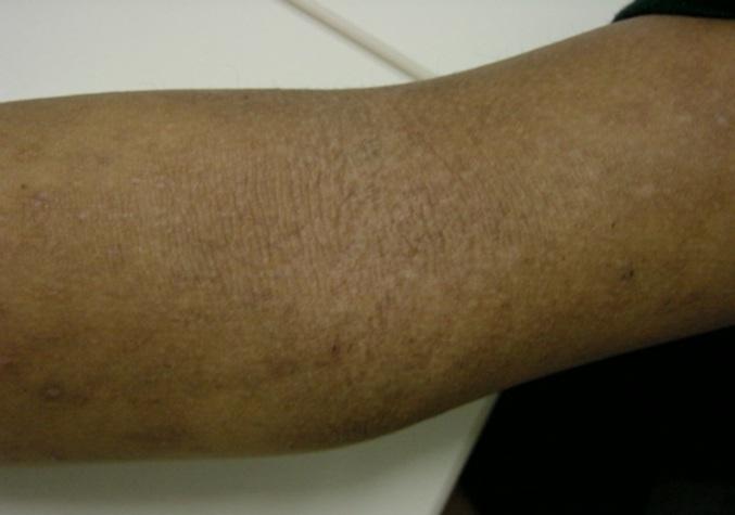 Foto 9 huidproblemen.jpg