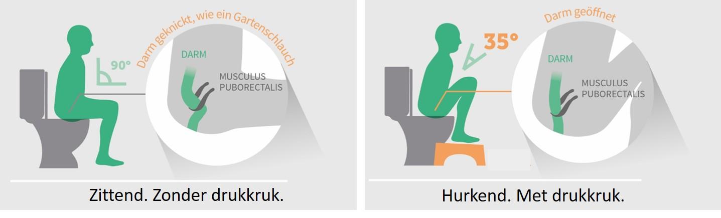 twee plaatjes over het verschil tussen een gewoon toilet en het gebruik van een toiletkruk