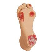 Oudere decubitus voet