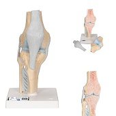 Anatomie model knie (3-delig, doorsnede)
