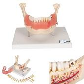 Anatomie model tandziekten, 21-delig, 18x26x19 cm