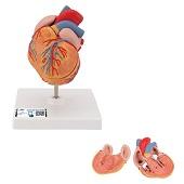 Anatomie model hart met linkerventrikelhypertrofie (LVH), 2-delig