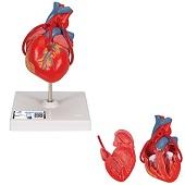 Anatomie model hart met bypass, 2-delig, 19x12x12 cm