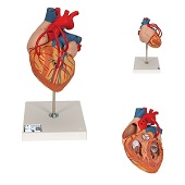 Anatomie model hart met bypass, 2 keer ware grootte, 4-delig, 32x18x18 cm