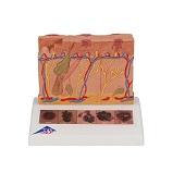 Anatomie model huidkanker, 6 stadia, 14x10x12 cm