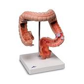 Anatomie model dikke darm