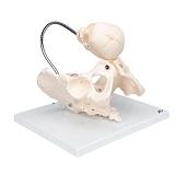 Anatomie model geboorte met schedel van de foetus