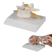 Anatomie model osteoporose, 13x12x7 cm