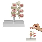 Osteoporose model<br/>(16 cm)