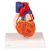 Anatomie model hart met bypasses, 2-delig, 14x8x8 cm
