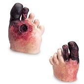 Diabetes voet
