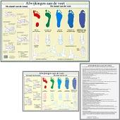 Anatomie poster voet en voetafwijkingen (Nederlands, gelamineerd, A2 + A4)